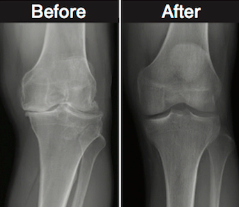 Stem Cells and Knee Pain