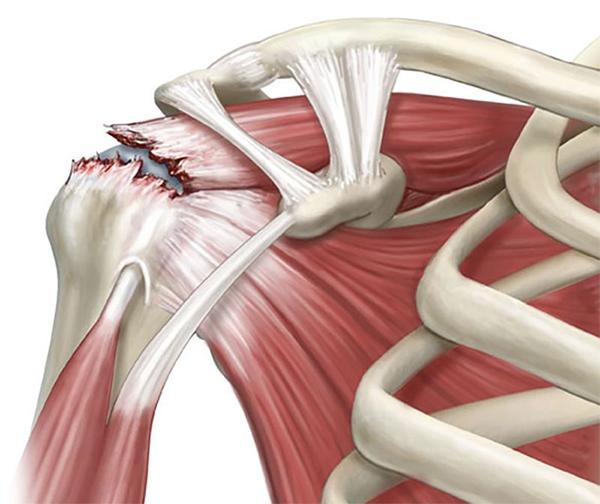 rotator cuff pain tear