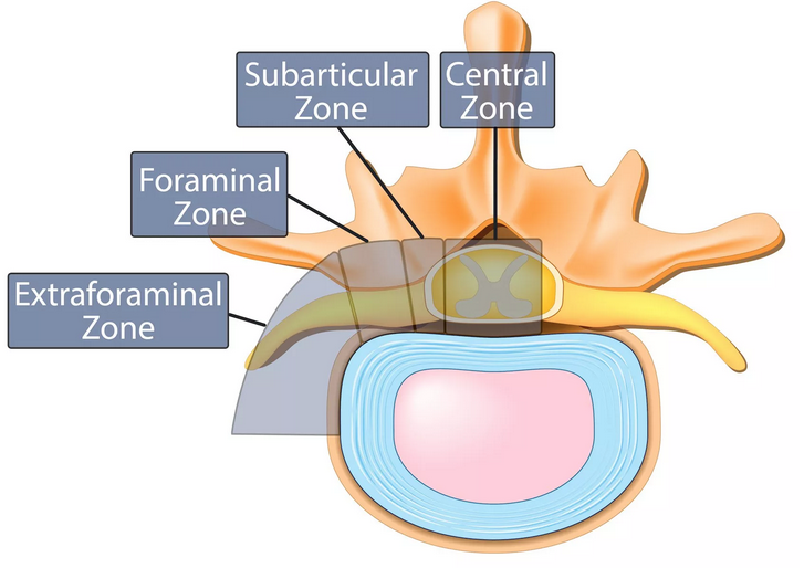 Bulging Disc and Herniated Discs